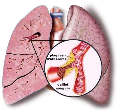 Schéma embolie pulmonaire