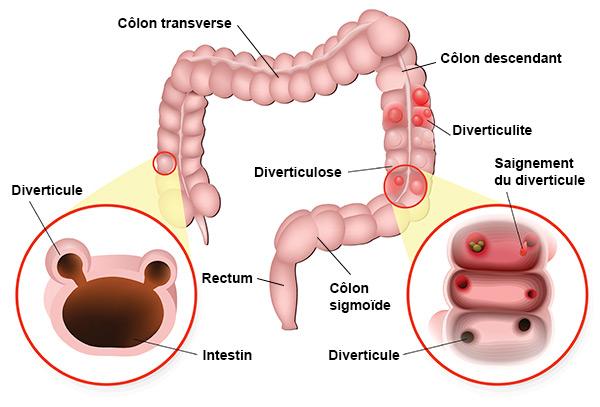 schéma des intestins