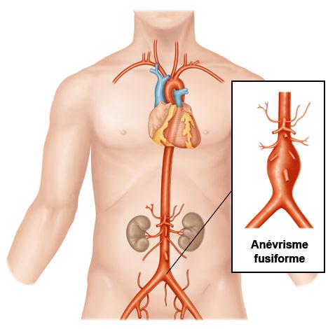 anévrisme fusiforme