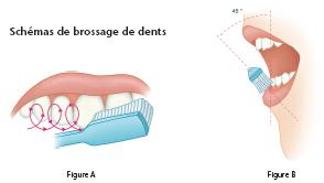 Schémas de brossage des dents