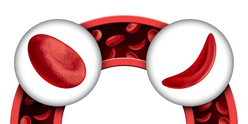 drépanocytose globule rouge faucille