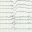 électro-encéphalogramme