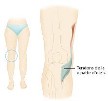 schéma du genou