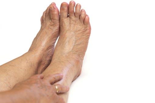 Artérite des jambes