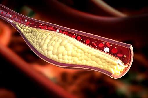 Cholestérol (excès)