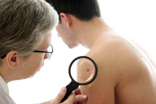 Mélanome (cancer de la peau)
