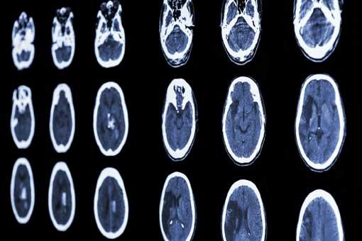 Accident vasculaire cérébral (AVC)