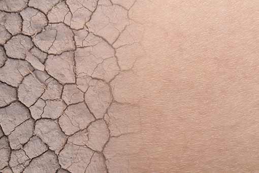 Sécheresse de la peau et des ongles